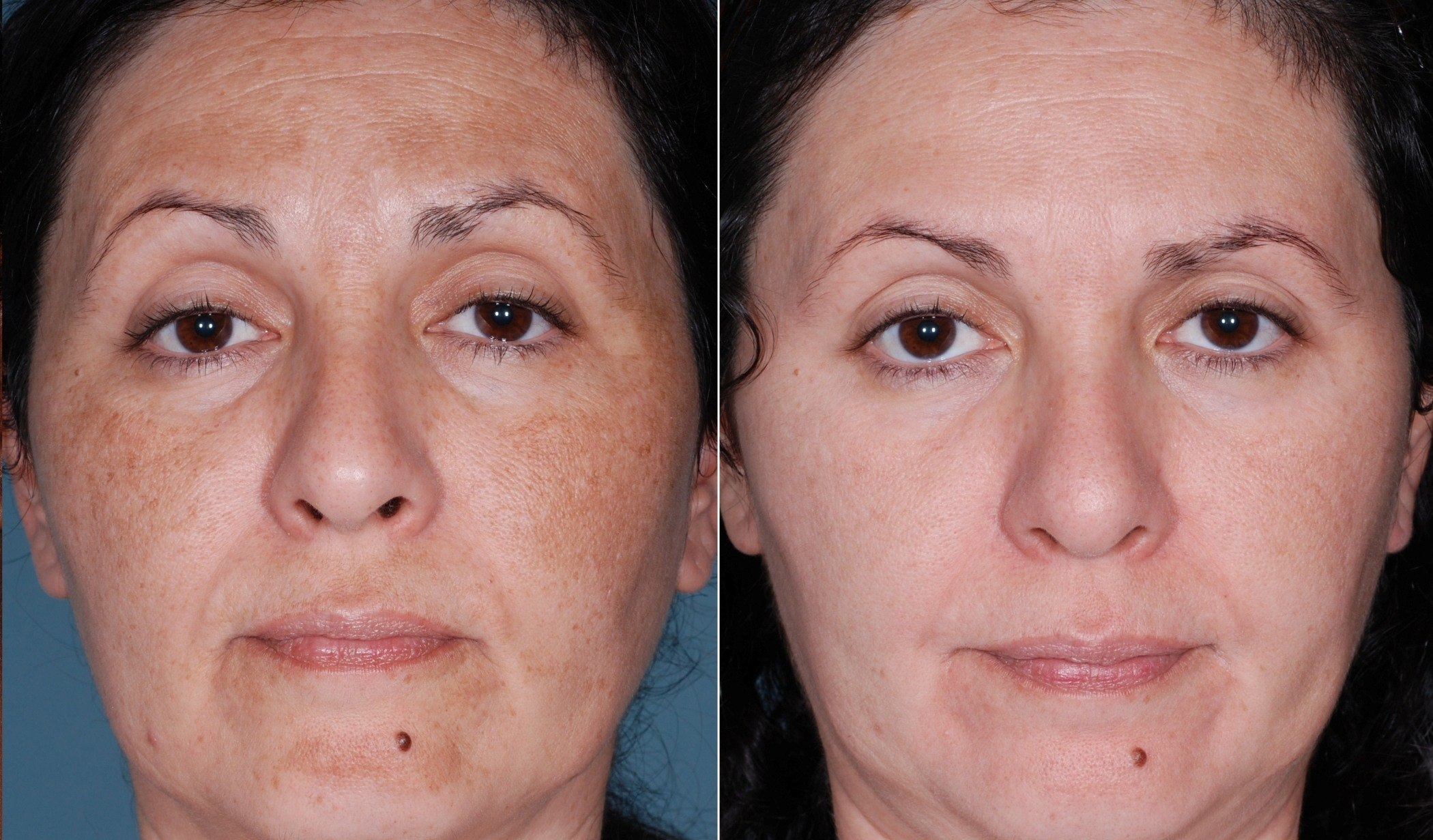 chemical peel Huntington