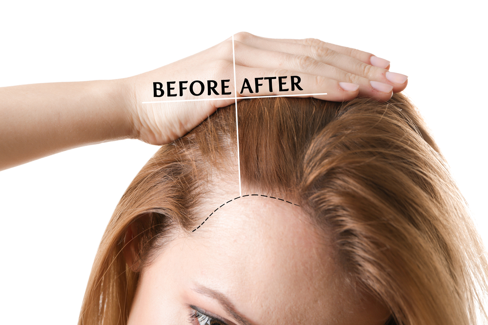 hair restoration with prp NYC